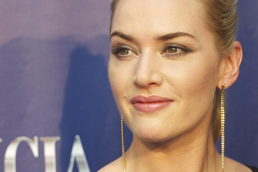 09 winslet chirurgia