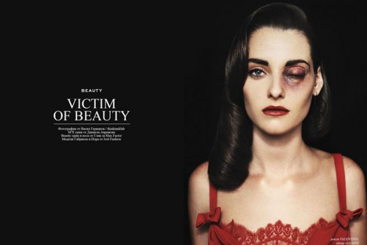 beauty victim1