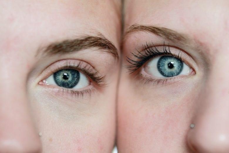 Come togliere le occhiaie: rimedi, consigli e trattamenti da provare