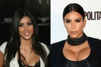 I Kardashian prima e dopo (parecchia) chirurgia estetica
