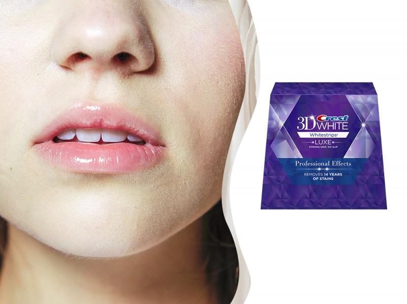 trattamenti-matrimonio-step-1-denti-bianchi