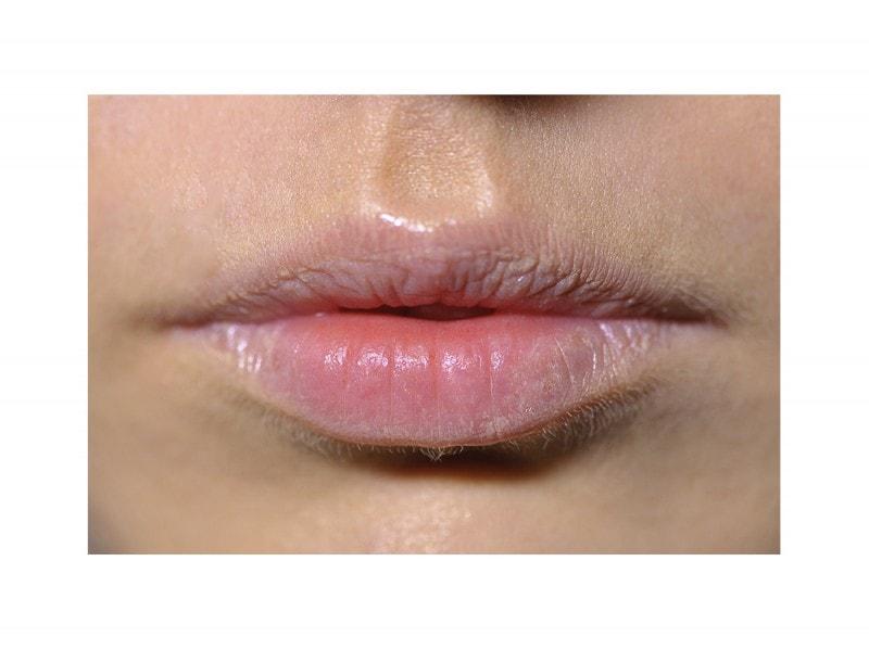 BalmyLips_Alberto-Zambelli_lip_W_F16_MI_001_2381828