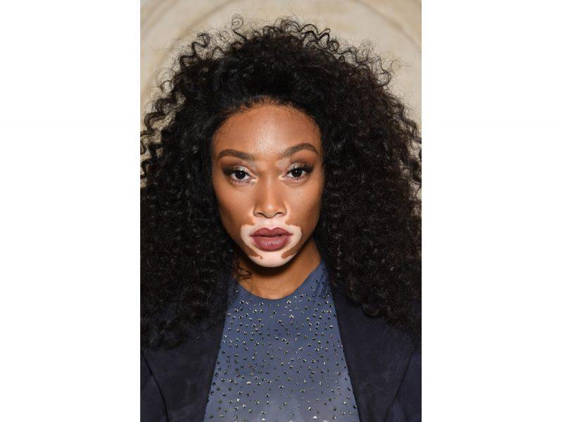 winnie harlow beauty look trucco capelli modella vitiligine (30)