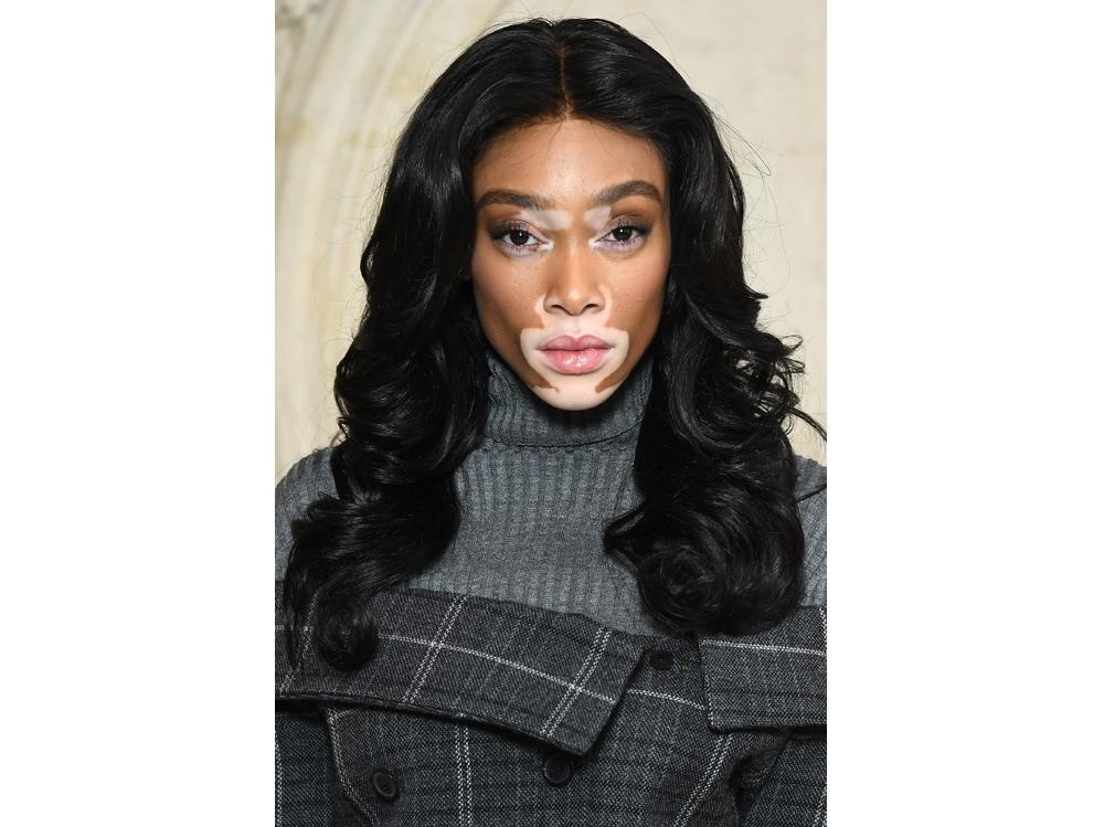 winnie harlow beauty look trucco capelli modella vitiligine (34)