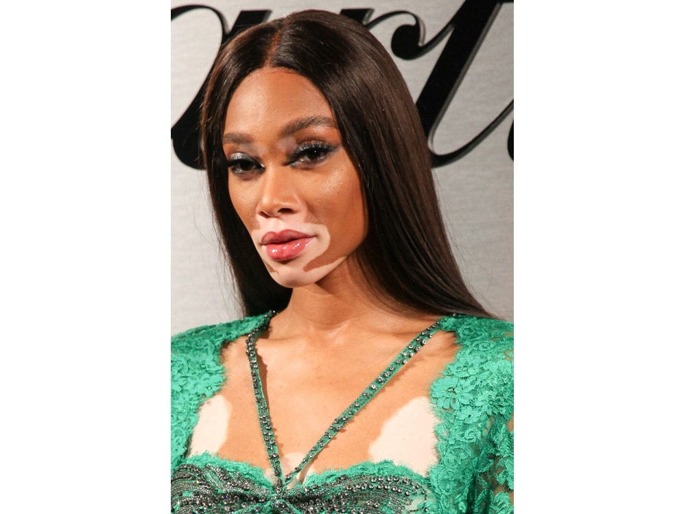 winnie harlow beauty look trucco capelli modella vitiligine (35)