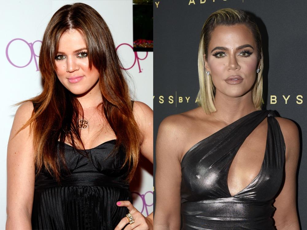 star-prima-e-dopo-khloe-kardashian